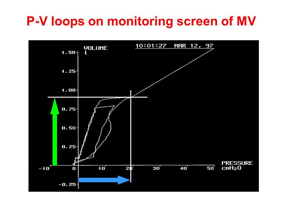 P-V loops on monitoring screen of MV