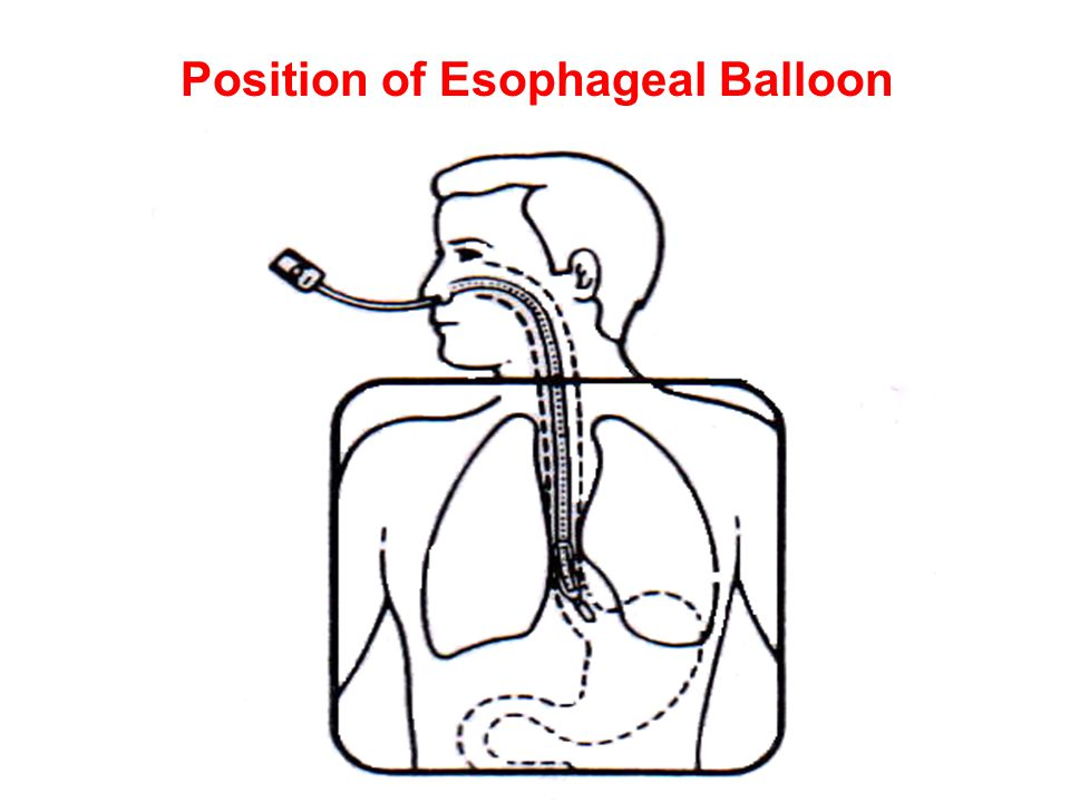 Position of Esophageal Balloon