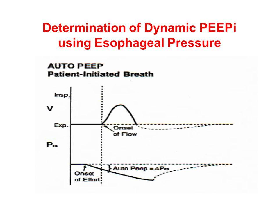 Determination of Dynamic PEEPi using Esophageal Pressure