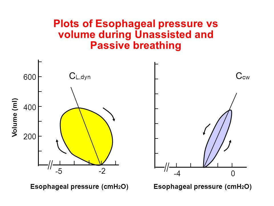 -40 Esophageal pressure (cmH 2 O) C cw -5 200 -2 400 600 Esophageal pressure (cmH 2 O) Volume (ml) Plots of Esophageal pressure vs volume during Unass