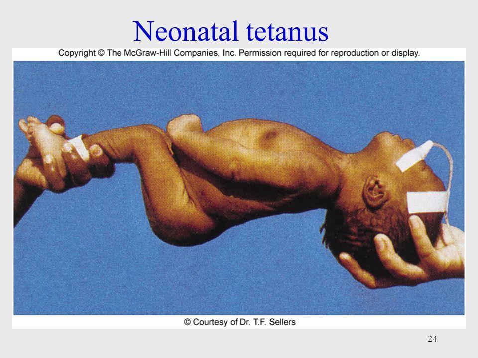 Neonatal tetanus 24