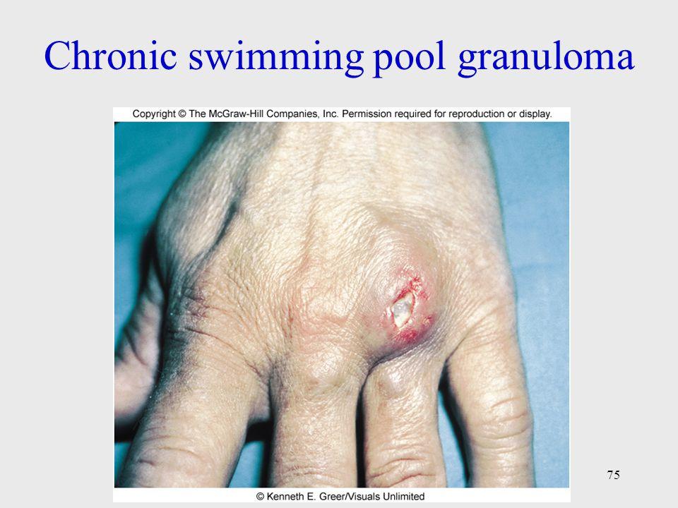 Chronic swimming pool granuloma 75