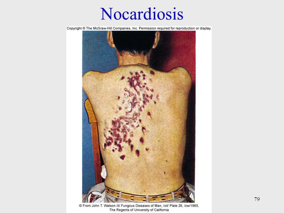 Nocardiosis 79