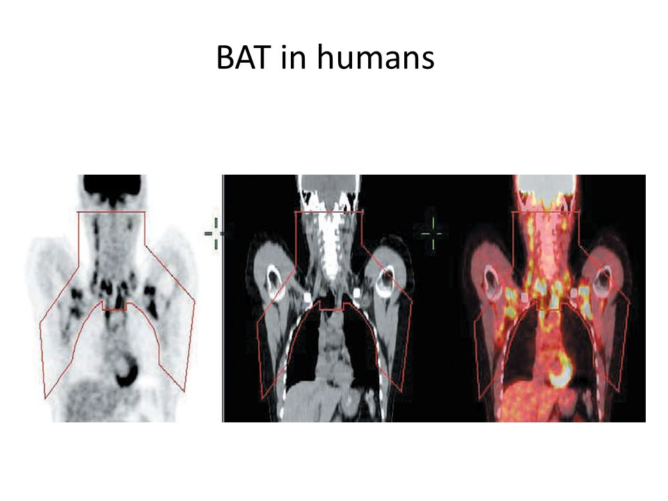 BAT in humans