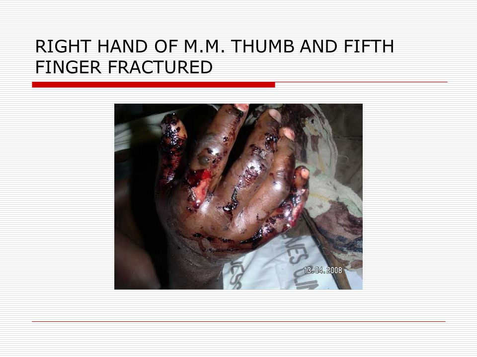RIGHT HAND OF M.M. THUMB AND FIFTH FINGER FRACTURED