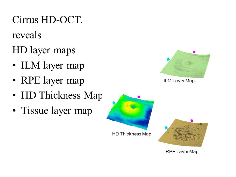 Cirrus HD-OCT. reveals HD layer maps ILM layer map RPE layer map HD Thickness Map Tissue layer map HD Thickness Map ILM Layer Map RPE Layer Map