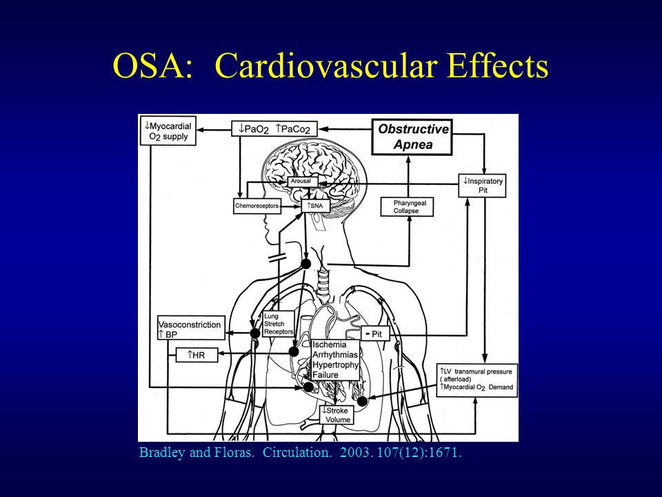 OSA: Cardiovascular Effects Bradley and Floras. Circulation. 2003. 107(12):1671.