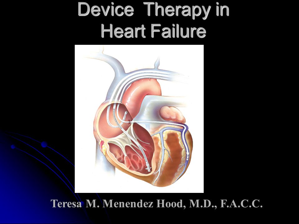 Device Therapy in Heart Failure Teresa M. Menendez Hood, M.D., F.A.C.C.