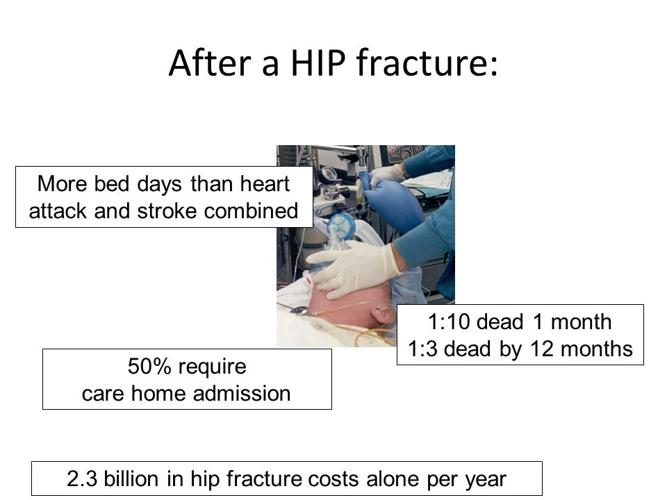 1:10 dead 1 month 1:3 dead by 12 months 50% require care home admission After a HIP fracture: 2.3 billion in hip fracture costs alone per year More bed days than heart attack and stroke combined