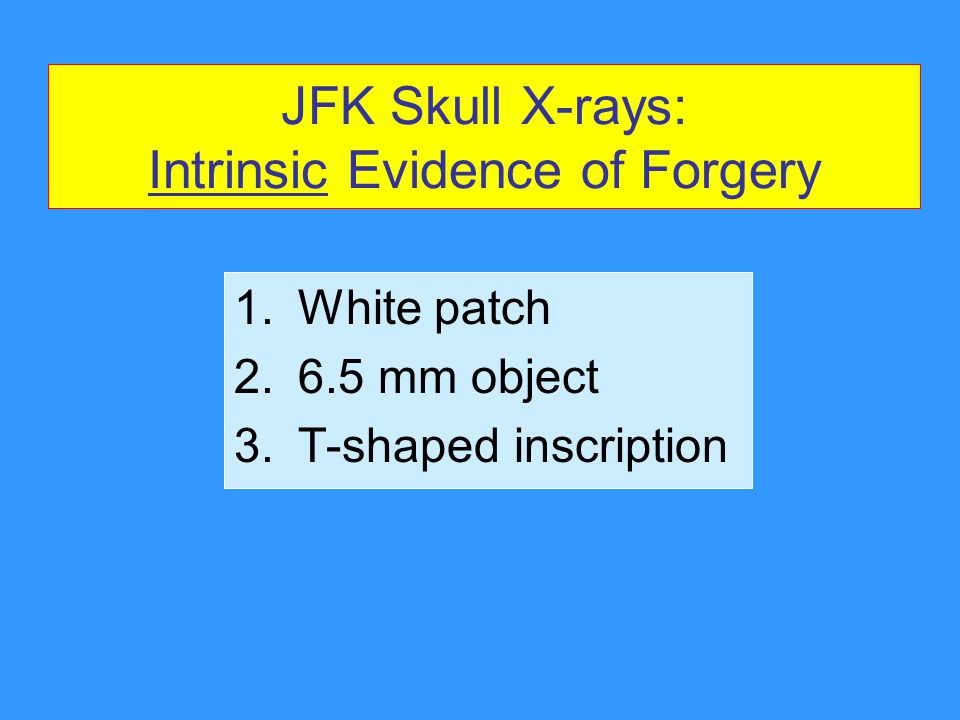 JFK Skull X-rays: Intrinsic Evidence of Forgery 1.White patch 2.6.5 mm object 3.T-shaped inscription