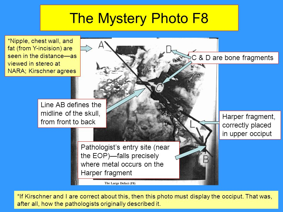 The Mystery Photo F8 Line AB defines the midline of the skull, from front to back Pathologist's entry site (near the EOP)—falls precisely where metal occurs on the Harper fragment *Nipple, chest wall, and fat (from Y-incision) are seen in the distance—as viewed in stereo at NARA; Kirschner agrees *If Kirschner and I are correct about this, then this photo must display the occiput.