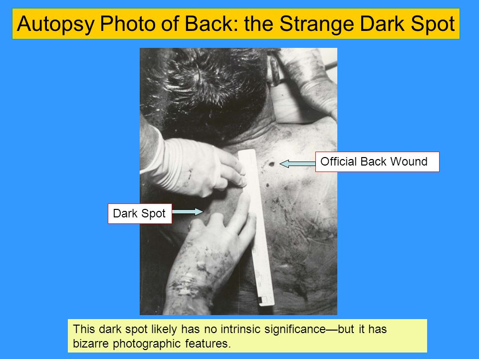 Dark Spot Autopsy Photo of Back: the Strange Dark Spot Official Back Wound This dark spot likely has no intrinsic significance—but it has bizarre photographic features.