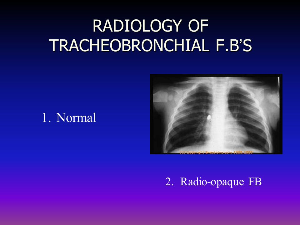 RADIOLOGY OF TRACHEOBRONCHIAL F.B ' S 1.Normal 2.Radio-opaque FB