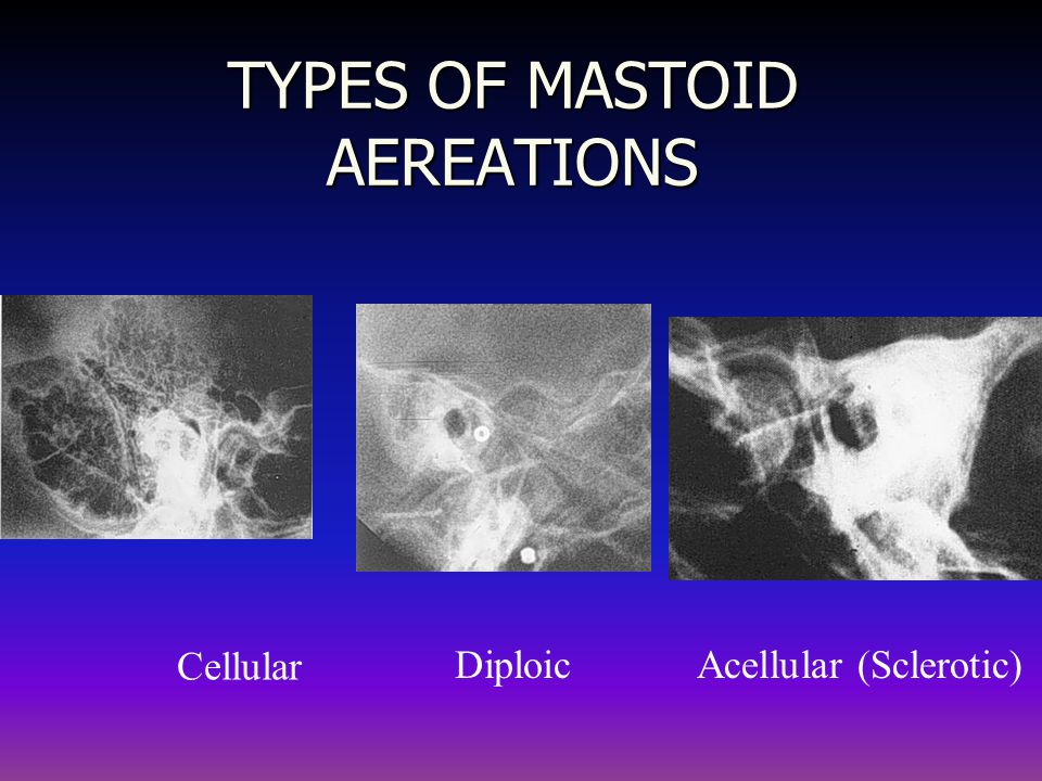 TYPES OF MASTOID AEREATIONS Cellular DiploicAcellular (Sclerotic)