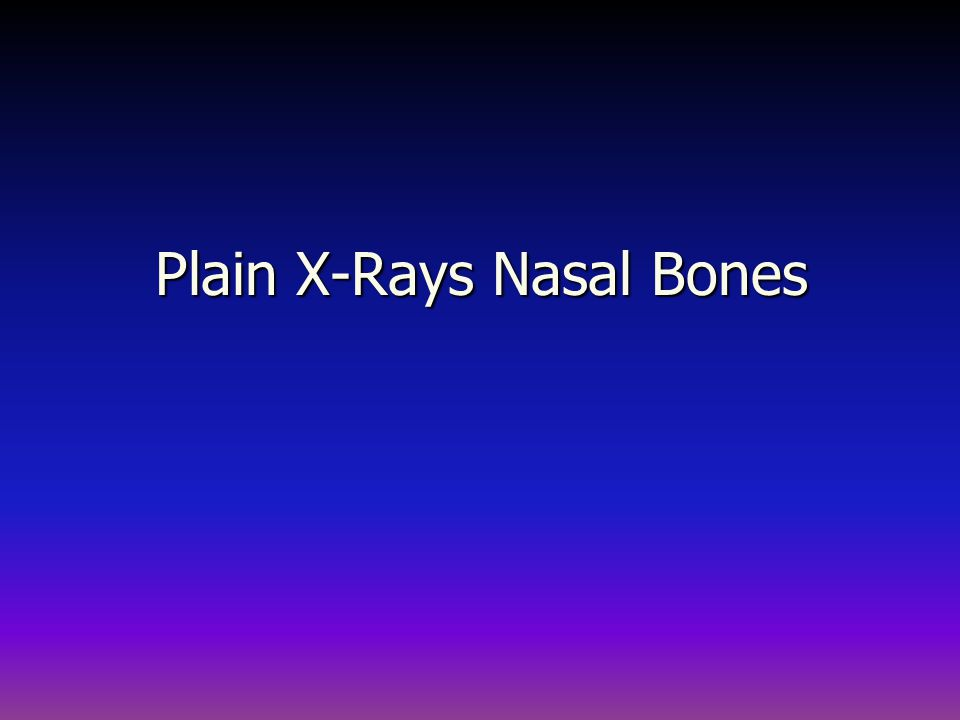 Normal Bony Nasal skeleton