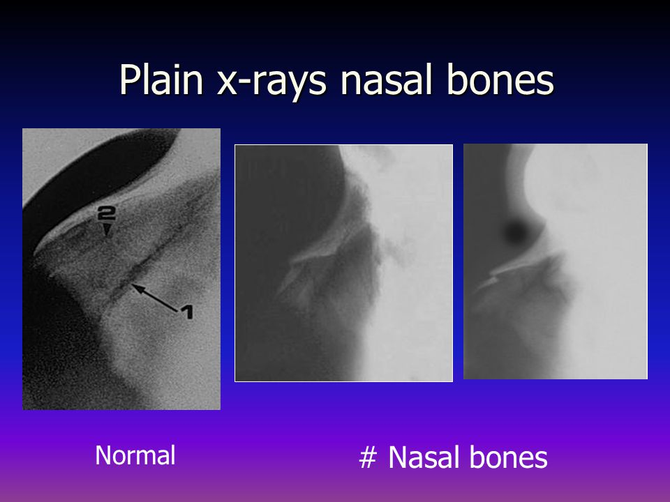 Indication X Ray Paranasal Sinuses Management of sinusitis if CT is not available Management of sinusitis if CT is not available
