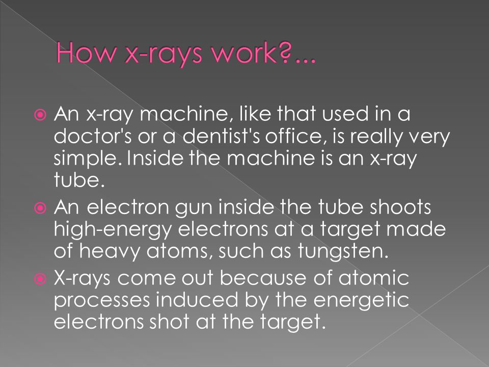  X-rays are a wonderful addition to the world of medicine; they let doctors peer inside a patient without any surgery at all.