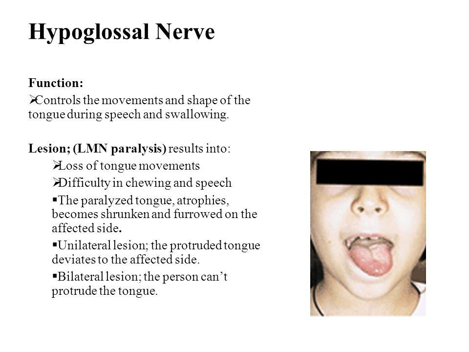 Hypoglossal Nerve Function:  Controls the movements and shape of the tongue during speech and swallowing. Lesion; (LMN paralysis) results into:  Los