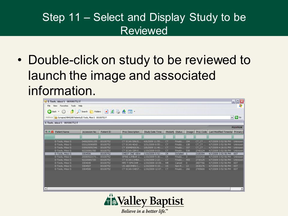 Step 11 – Select and Display Study to be Reviewed Double-click on study to be reviewed to launch the image and associated information.