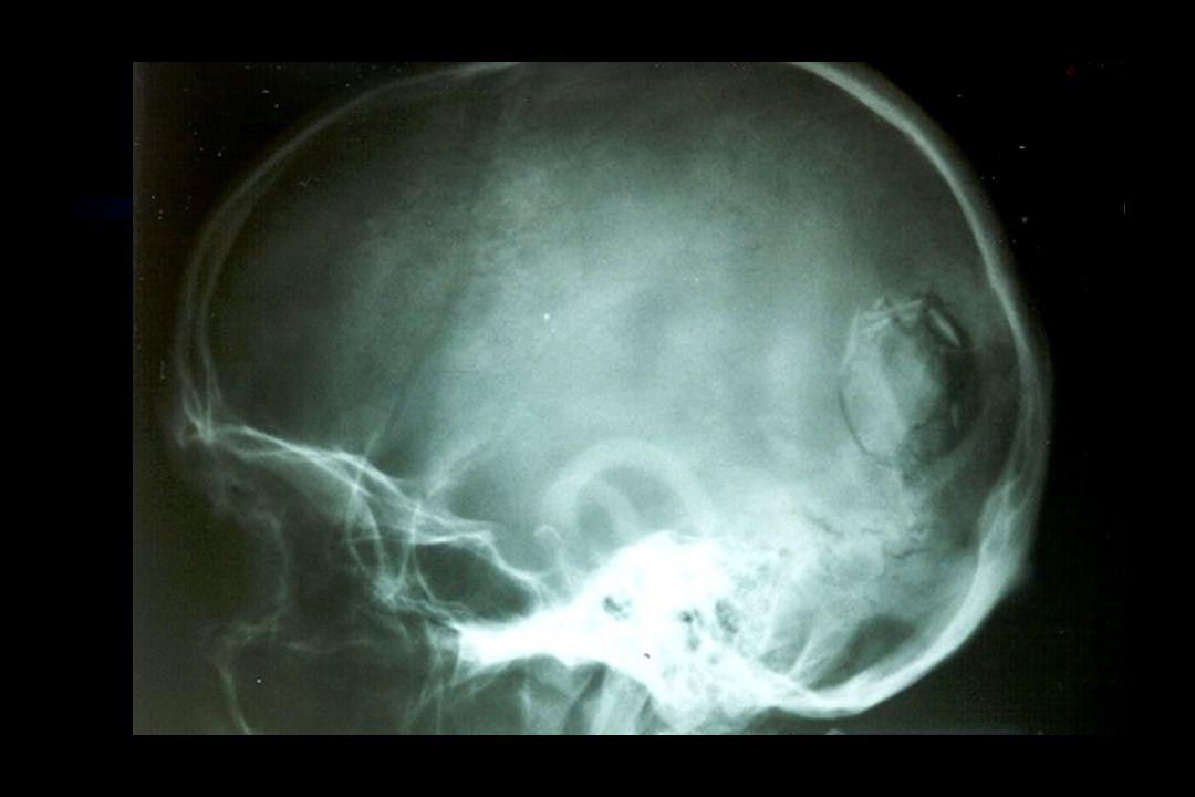 The Neurosurgery A-B-C's Airway Breathing CT Head Scan...