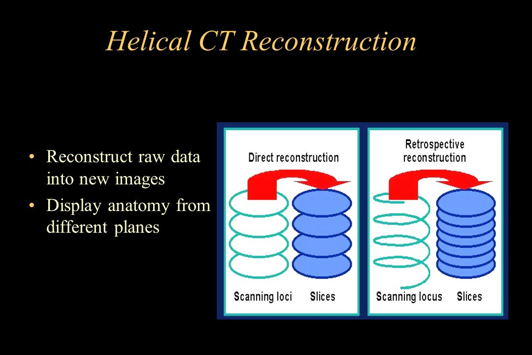 Helical CT Reconstruction Reconstruct raw data into new images Display anatomy from different planes