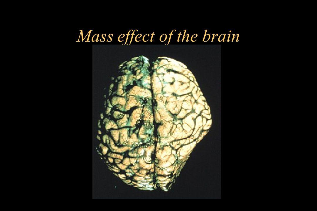 Mass effect of the brain