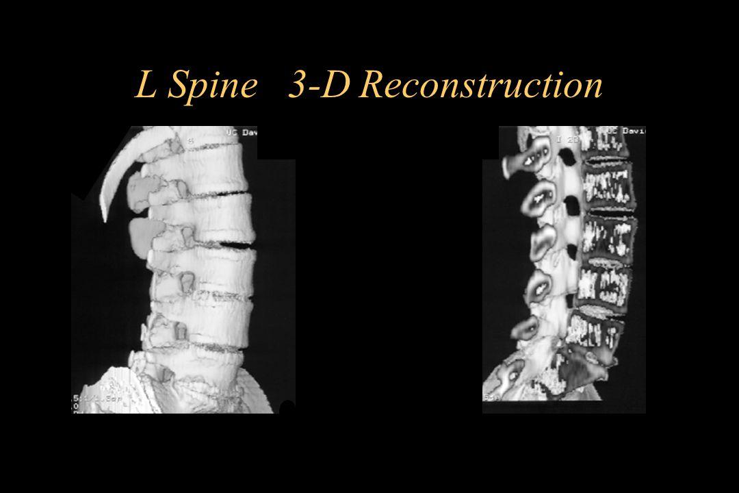 L Spine 3-D Reconstruction