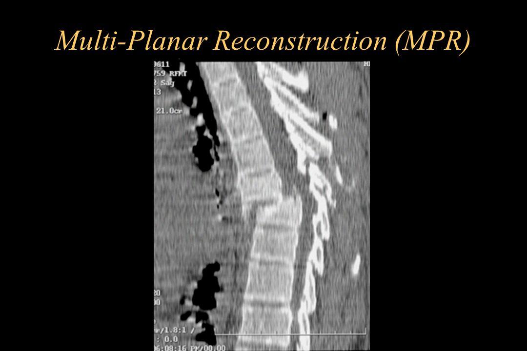 Multi-Planar Reconstruction (MPR)