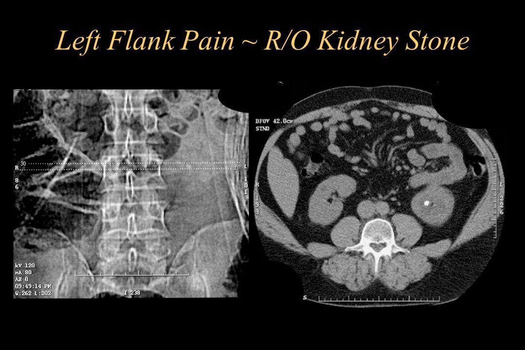 Left Flank Pain ~ R/O Kidney Stone