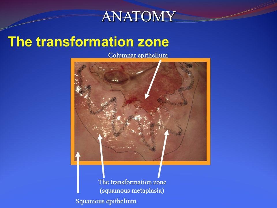 The transformation zone (squamous metaplasia) Squamous epithelium Columnar epithelium ANATOMY