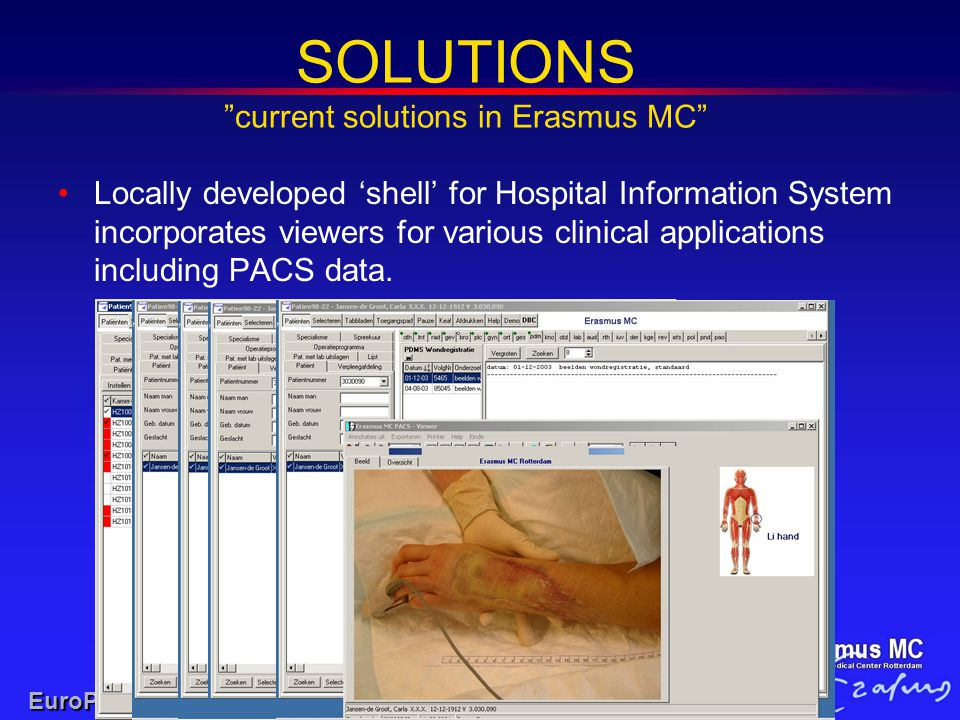 """SOLUTIONS """"current solutions in Erasmus MC"""" EuroPACS-MIR 2004 Locally developed 'shell' for Hospital Information System incorporates viewers for vario"""