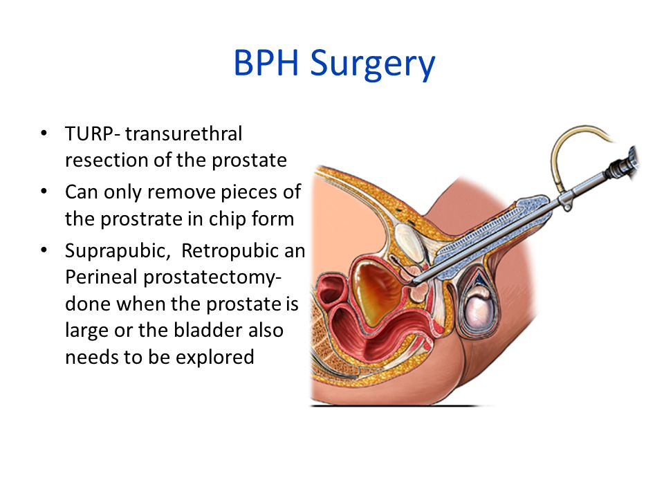 BPH Surgery TURP- transurethral resection of the prostate Can only remove pieces of the prostrate in chip form Suprapubic, Retropubic and Perineal prostatectomy- done when the prostate is large or the bladder also needs to be explored