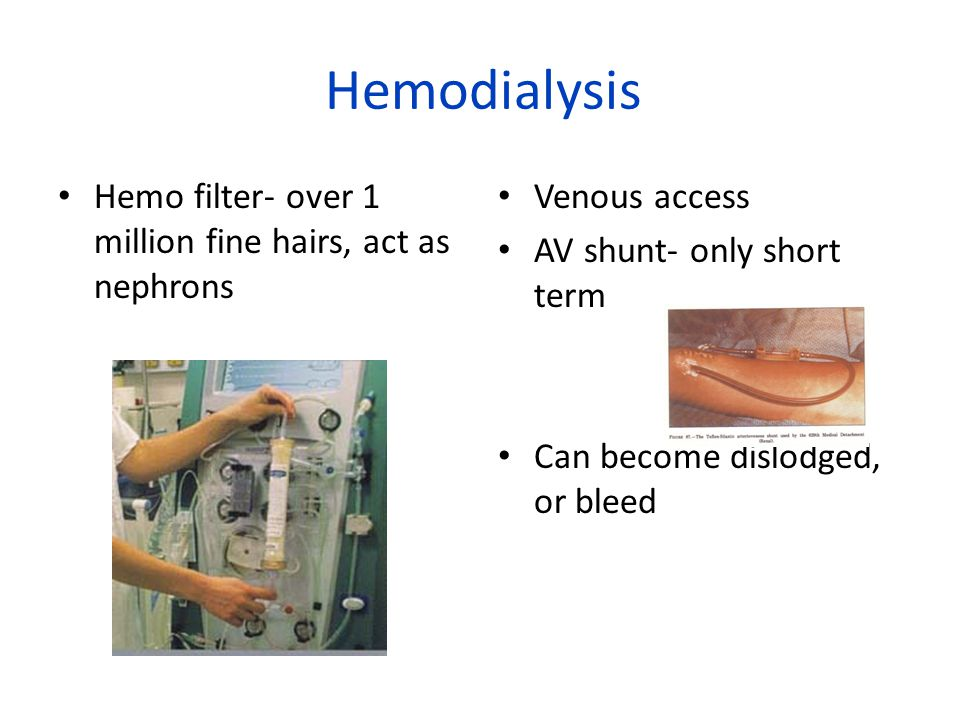 Hemodialysis Hemo filter- over 1 million fine hairs, act as nephrons Venous access AV shunt- only short term Can become dislodged, or bleed