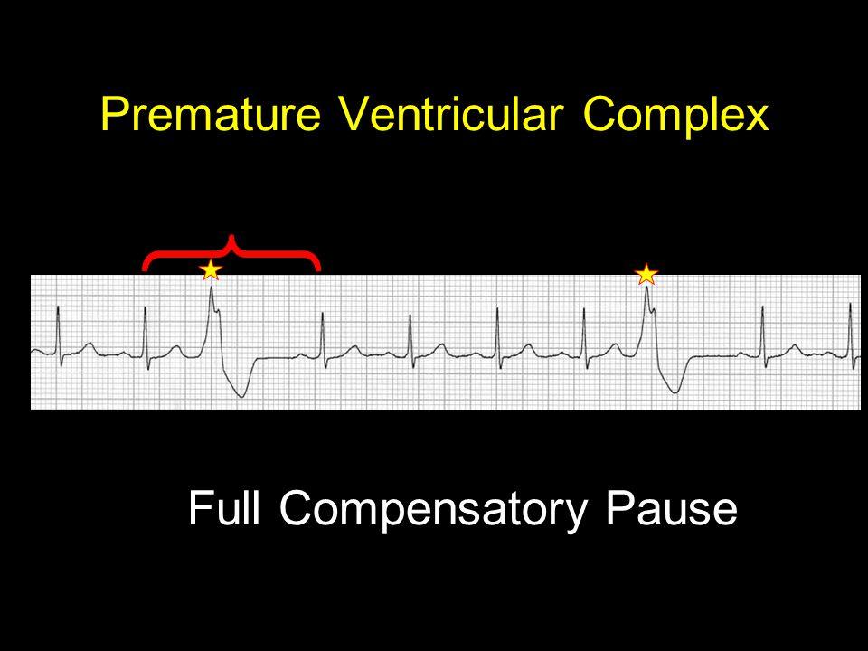 Premature Ventricular Complex Full Compensatory Pause