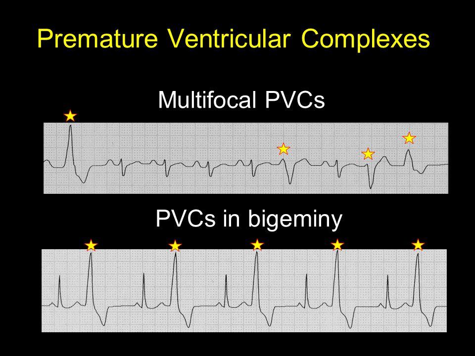 Premature Ventricular Complexes Multifocal PVCs PVCs in bigeminy