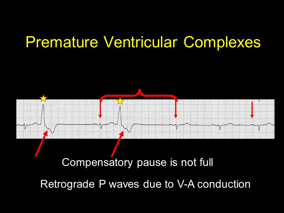 Premature Ventricular Complexes Compensatory pause is not full Retrograde P waves due to V-A conduction