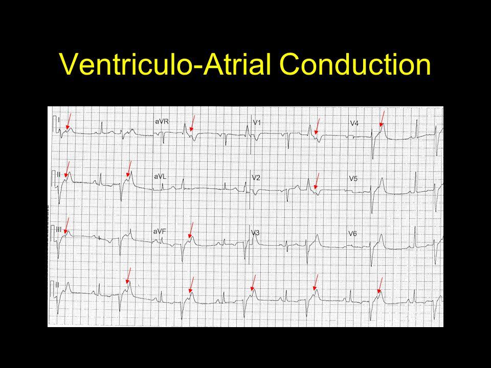 Ventriculo-Atrial Conduction
