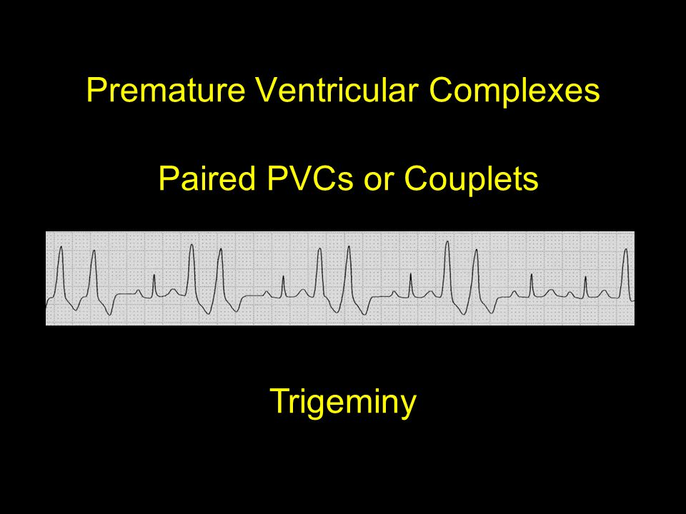 Premature Ventricular Complexes Paired PVCs or Couplets Trigeminy