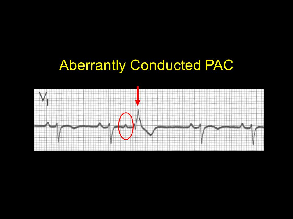 Aberrantly Conducted PAC