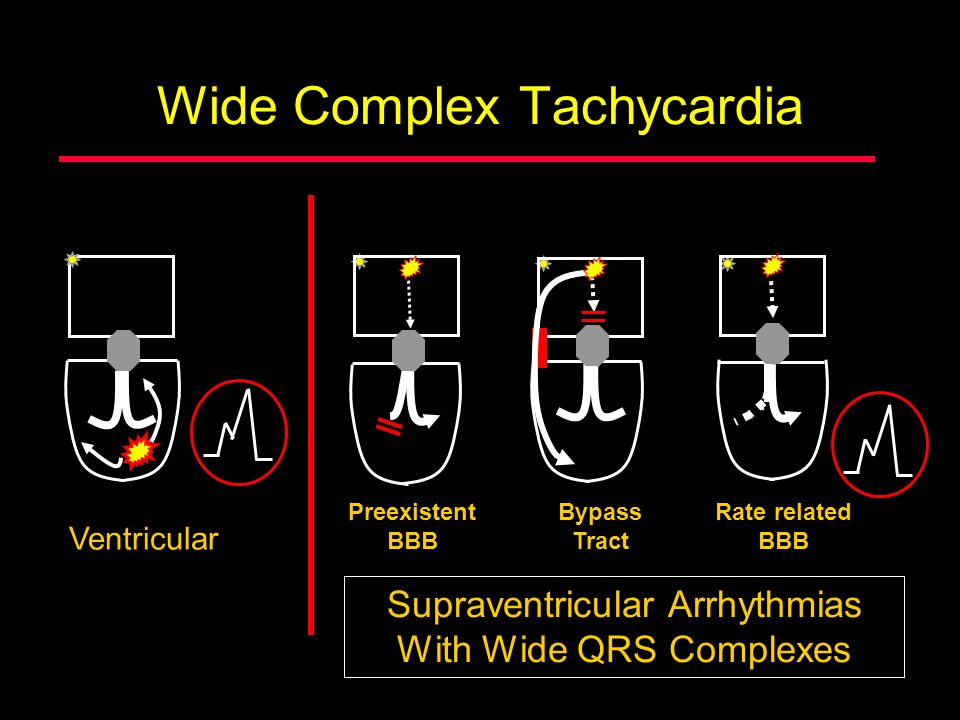 Wide Complex Tachycardia Ventricular Supraventricular Arrhythmias With Wide QRS Complexes Preexistent BBB Bypass Tract Rate related BBB