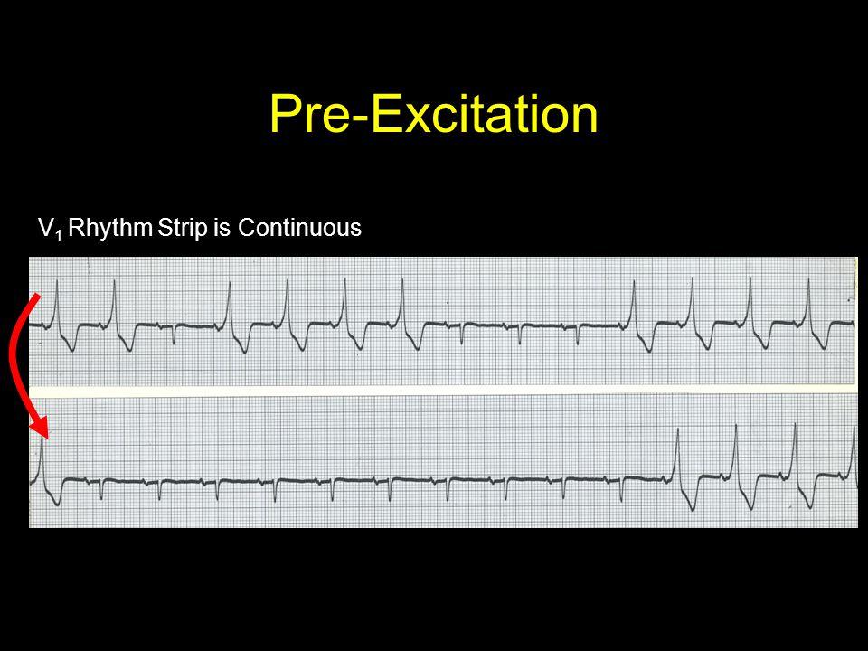 Pre-Excitation V 1 Rhythm Strip is Continuous