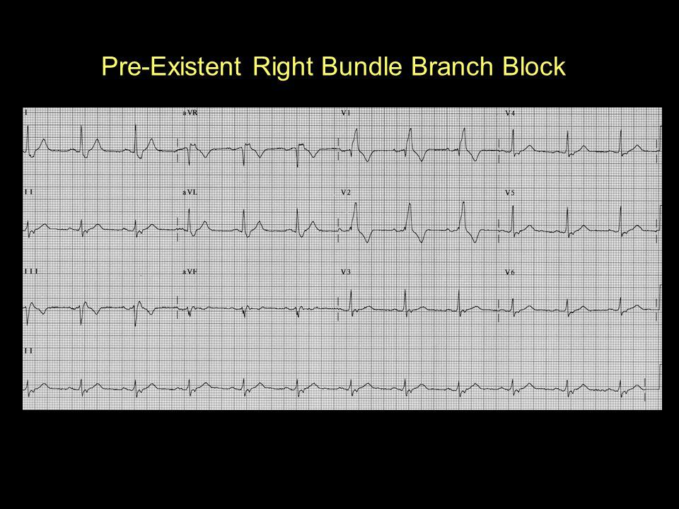 Pre-Existent Right Bundle Branch Block