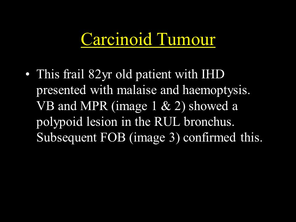 Carcinoid Tumour This frail 82yr old patient with IHD presented with malaise and haemoptysis.