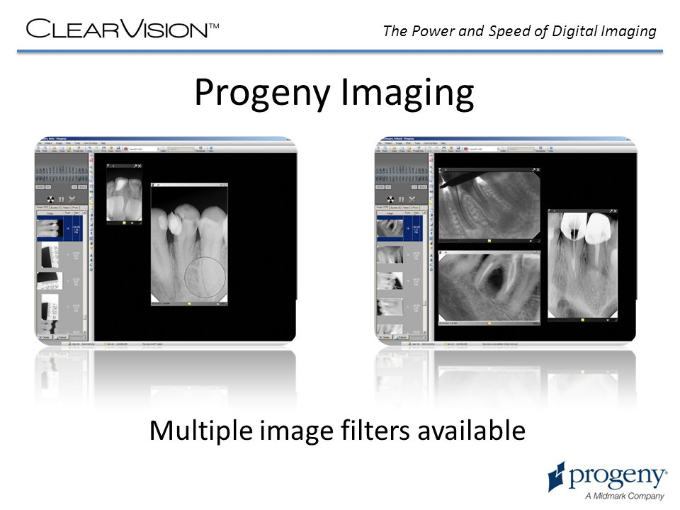 The Power and Speed of Digital Imaging Progeny Imaging Multiple image filters available