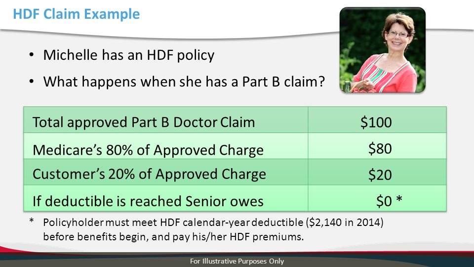 HDF Claim Example For Illustrative Purposes Only Michelle has an HDF policy What happens when she has a Part B claim? Total approved Part B Doctor Cla
