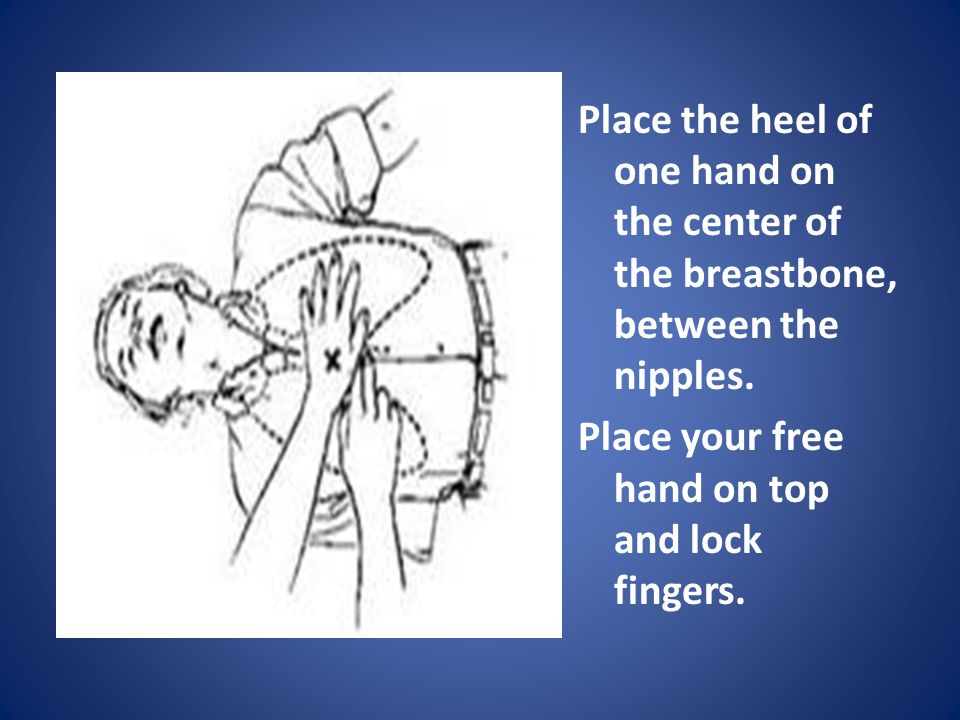 Place the heel of one hand on the center of the breastbone, between the nipples.