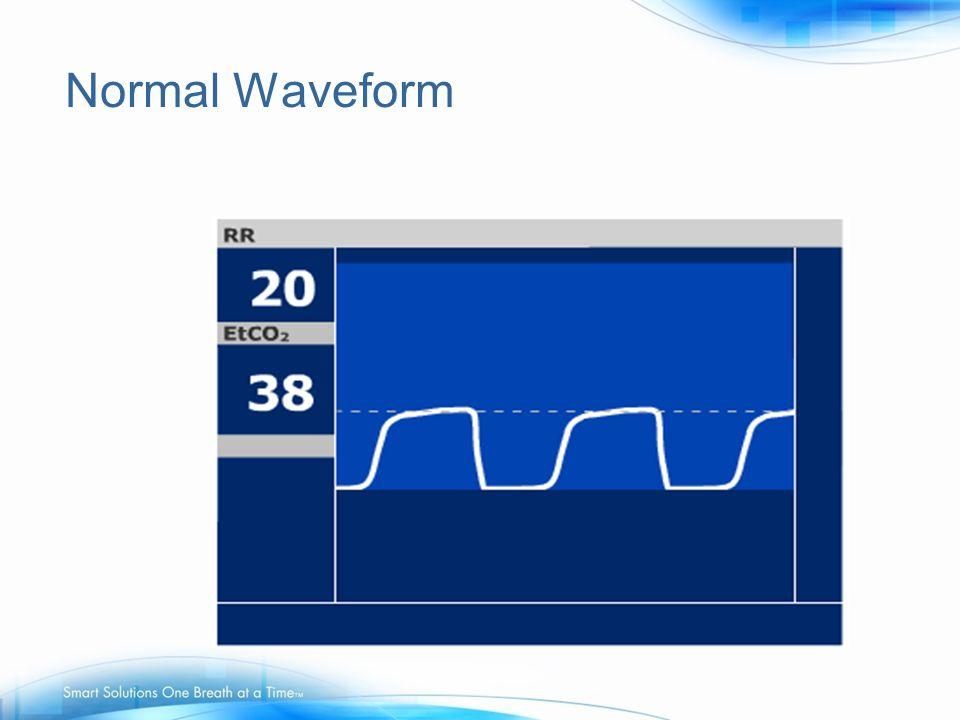 Normal Waveform