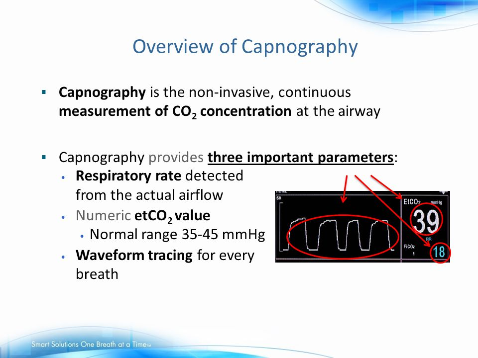 Overview of Capnography  Capnography is the non-invasive, continuous measurement of CO 2 concentration at the airway  Capnography provides three imp