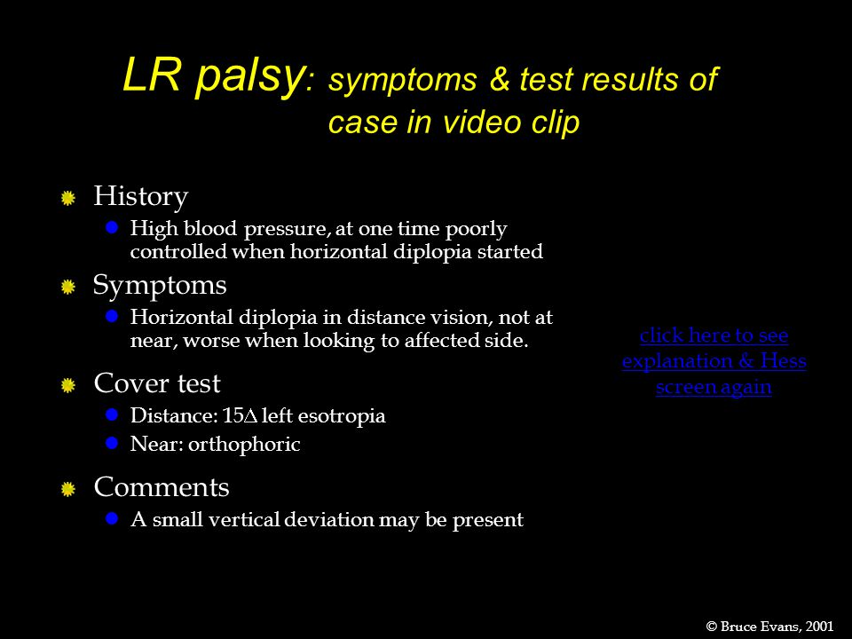 LR palsy :symptoms & test results of case in video clip click here to see explanation & Hess screen again History lHigh blood pressure, at one time poorly controlled when horizontal diplopia started Symptoms lHorizontal diplopia in distance vision, not at near, worse when looking to affected side.