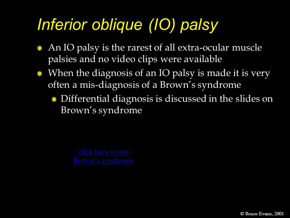 Inferior oblique (IO) palsy © Bruce Evans, 2001 An IO palsy is the rarest of all extra-ocular muscle palsies and no video clips were available When the diagnosis of an IO palsy is made it is very often a mis-diagnosis of a Brown's syndrome Differential diagnosis is discussed in the slides on Brown's syndrome click here to see Brown's syndrome